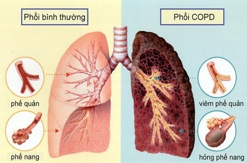 Bệnh lao phổi cần được phát hiện sớm và điều trị kịp thời tránh biến chứng nguy hiểm