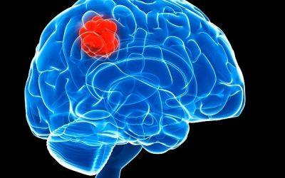Bệnh u não sống được bao lâu?