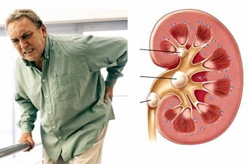 Sỏi thận nếu không được chữa trị hiệu quả có thể gây nên biến chứng nguy hiểm