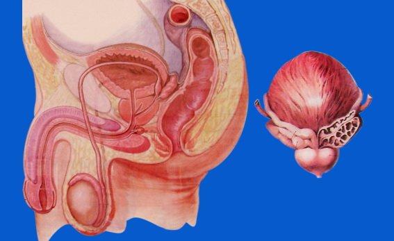U xơ tuyến tiền liệt là bệnh lý khá phổ biến cần được phát hiện sớm và điều trị hiệu quả