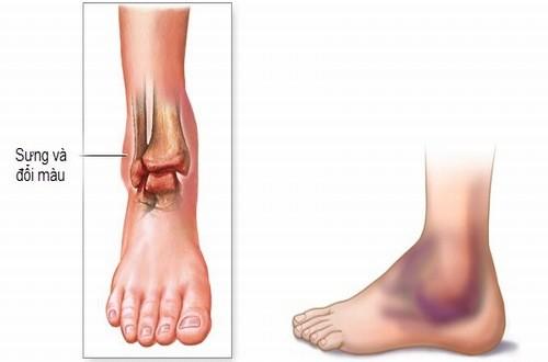 Bong gân chân là hiện tượng khá phổ biến