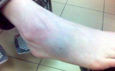 Cách chữa bong gân cổ chân tại nhà hiệu quả nhất