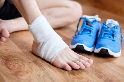 Khi bị bong gân cổ chân người bệnh cần cố định cổ chân, nghỉ ngơi để giảm sưng nề