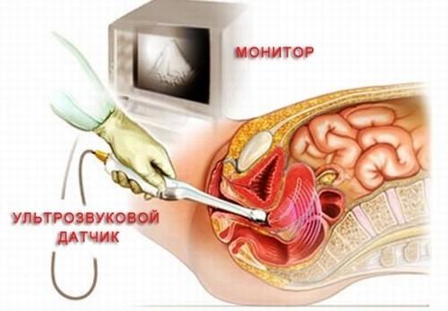 Có nên siêu âm đầu dò khi mới mang thai?