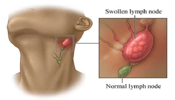 Sưng hạch bạch huyết là nguyên nhân gây đau một bên họng