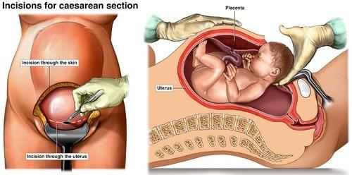 Đẻ mổ là phương pháp giúp thai nhi chào đời bằng cách rạch một đường ngang ở bụng mẹ