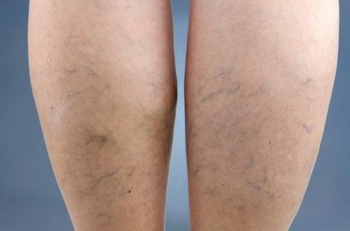 Giãn tĩnh mạch chân gây khó chịu và khó khăn cho đi lại