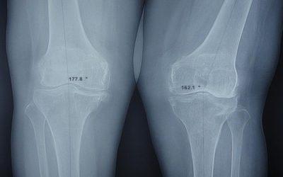 Khi nào cần chụp X quang đầu gối?