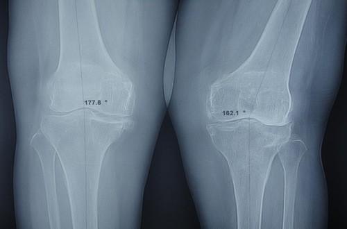 Chụp X quang khớp gối giúp chẩn đoán chính xác các bệnh lý ở khớp gối