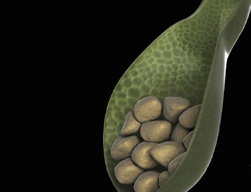 Sỏi túi mật có thể dẫn tới nhiều biến chứng nghiêm trọng, thậm chí gây đe dọa tính mạng nếu không điều trị sớm.
