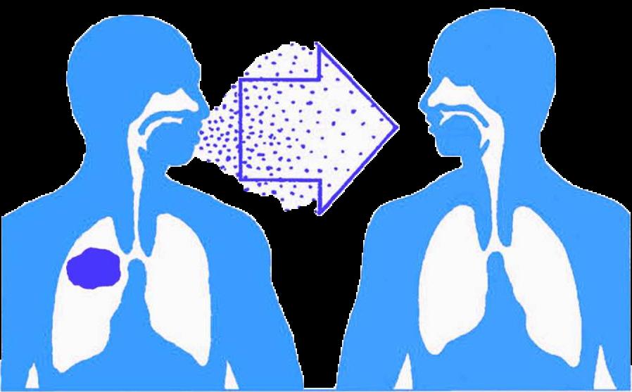 Bệnh lao là bệnh lý lây nhiễm cho những người xung quanh qua đường hô hấp