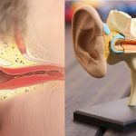 Những biến chứng nguy hiểm của bệnh viêm tai giữa