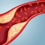 Những nguyên nhân dẫn đến hiện tượng tăng mỡ máu
