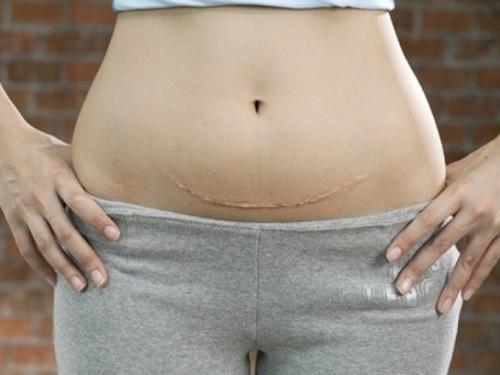 Nếu bạn đã sinh mổ 2 lần trước đó và muốn mang thai lần thứ 3 thì bạn phải chờ thời gian để cơ thể phục hồi.
