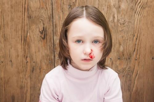 Chảy máu cam ở trẻ thường xuất hiện bất ngờ và phổ biến