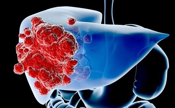 ung thư gan nên ăn gì