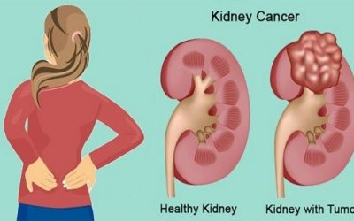 Ung thư thận chữa thế nào?
