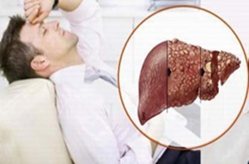 Bệnh lý gan mật khiến bạn mệt mỏi