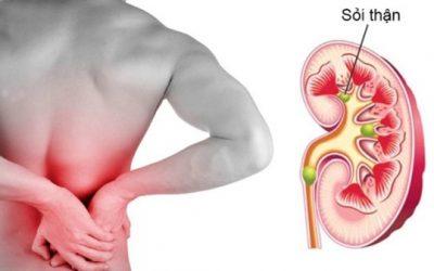 Bệnh sỏi thận và cách phòng ngừa