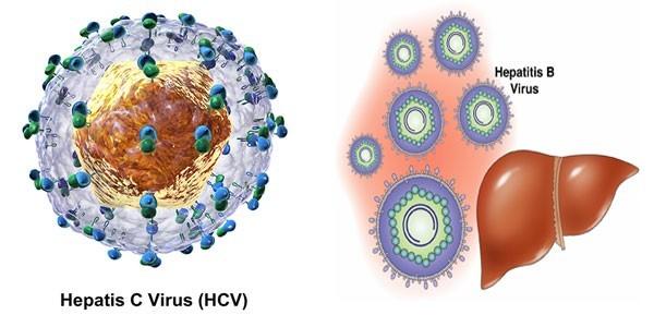 Bệnh viêm gan C cần được phát hiện sớm và điều trị hiệu quả