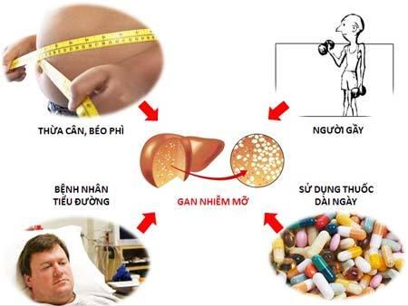 Gan nhiễm mỡ có thể do nhiều nguyên nhân gây nên cần được phát hiện sớm và điều trị hiệu quả