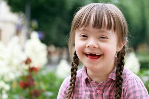 Hội chứng down xuất hiện do sự rối loạn nhiễm sắc thể