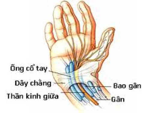 Hội chứng ống cổ tay do nhiều nguyên nhân gây ra cần được phát hiện sớm và điều trị kịp thời hiệu quả