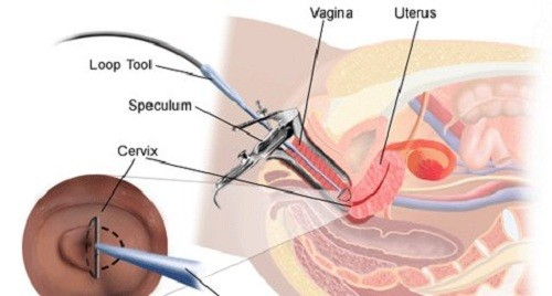 Tác động để cổ tử cung mở rộng, tạo điều kiện đưa dụng cụ phẫu thuật vào lấy dịch ra ngoài.