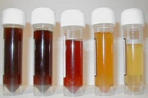Nước tiểu màu vàng có thể là dấu hiệu cảnh báo tình trạng sức khỏe bất thường
