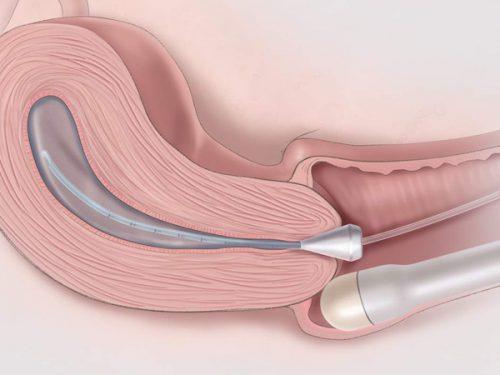 Siêu âm đầu dò là hình thức đưa đầu dò khoảng 2-3 inch vào trong ống âm đạo, dùng sóng âm tần cao, để hiển thị rõ hình ảnh tử cung, buồng trứng và một số bộ phận khác