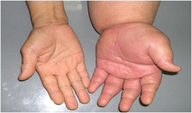 Phù chân tay là dấu hiệu cảnh báo suy thận