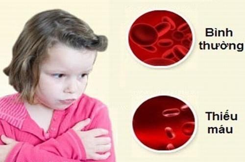 Thiếu máu thường gặp ở trẻ nhỏ và phụ nữ mang thai