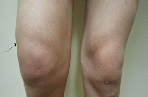 Triệu chứng cảnh báo tràn dịch khớp gối