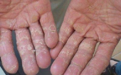 Tróc da tay thiếu chất gì? Tróc da tay phải làm sao?