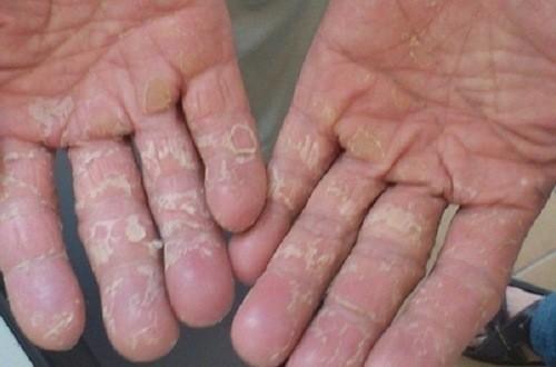 Bong tróc da tay là triệu chứng khá phổ biến nhiều người mắc phải