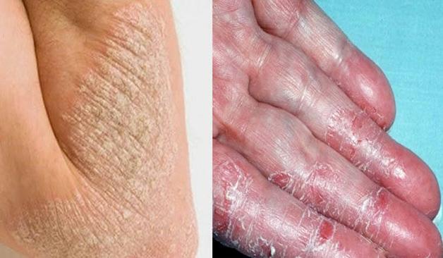 Bong tróc da tay là tình trạng nhiều người mắc phải