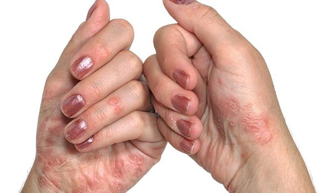 Triệu chứng của bong tróc da tay