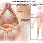 Ung thư bàng quang di căn