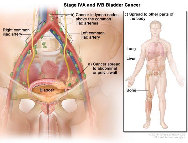 Ung thư bàng quang giai đoạn cuối có khả năng di căn đến xương, phổi, gan