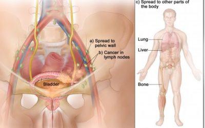 Ung thư bàng quang giai đoạn cuối
