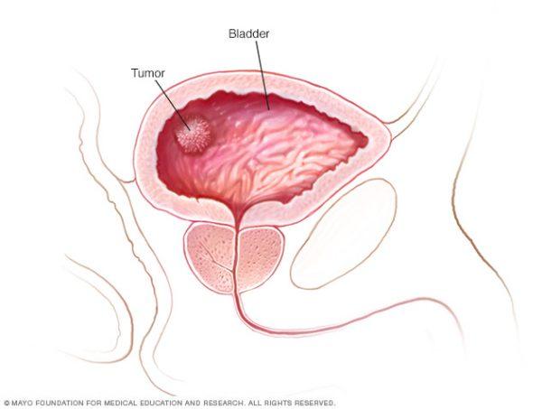 Ung thư bàng quang sống được bao lâu phụ thuộc rất nhiều vào giai đoạn bệnh