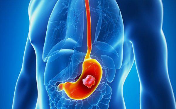 Ung thư dạ dày phổ biến trong các bệnh ung thư đường tiêu hóa ở cả nam giới và nữ giới