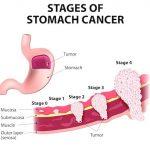 Ung thư dạ dày di căn sống được bao lâu?