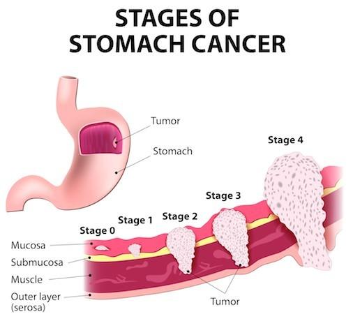 Tiên lượng sống cho bệnh nhân ung thư dạ dày di căn không cao