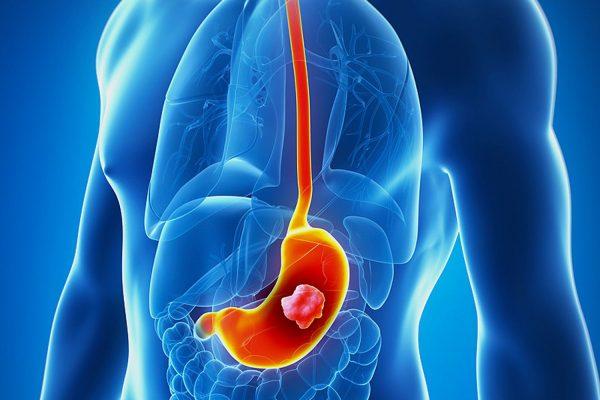 Ung thư dạ dày phổ biến trong các bệnh ung thư đường tiêu hóa