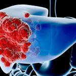 Ung thư gan di căn