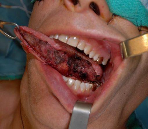 Ung thư lưỡi sống được bao lâu?