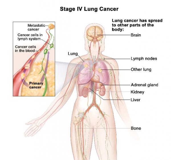 Ung thư phổi giai đoạn cuối đã di căn rộng sang hai bên phổi và các cơ quan ở xa như xương, não, tuyến thượng thận...