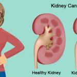 Ung thư thận có chữa được không?