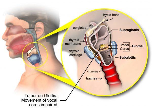 Ung thư thanh quản thường xuất phát từ niêm mạc của dây thanh, nắp thanh nhiệt, băng thanh thất, thanh nhiệt